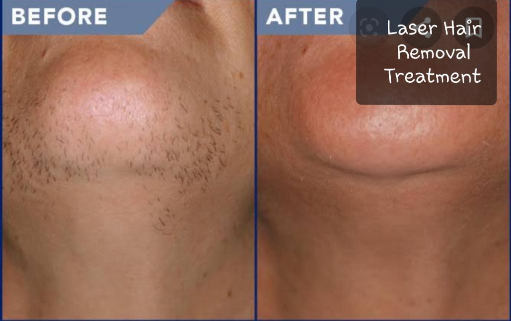 Laser Hair Removal Derma Desire